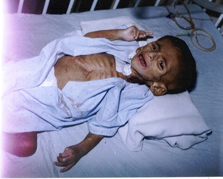 Malnourished-boy-from-Manavi-Ecuador